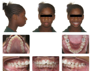 example of teeth photos needed for SCL application