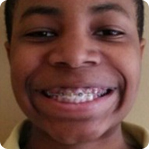 James-Gilbert-smiling-with-braces-194x300