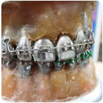 history-of-braces